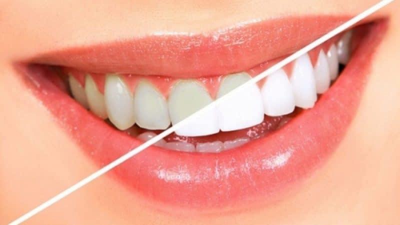 Tẩy trắng răng Đà Nẵng